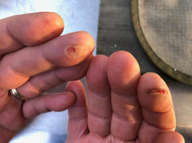 Note to self. Use gloves when handling burning firewood